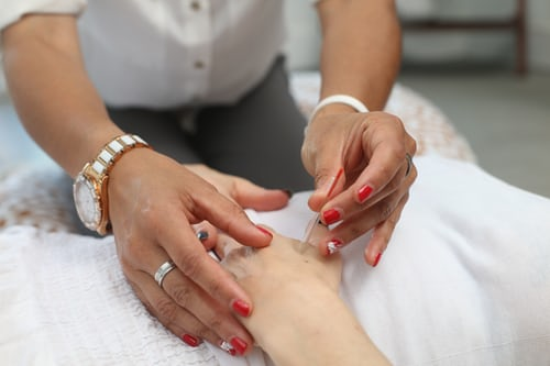 Three facts to know about trying out acupuncture treatments for health